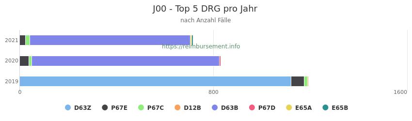 J00 Verteilung und Anzahl der zuordnungsrelevanten Fallpauschalen (DRG) zur Hauptdiagnose (ICD-10 Codes) pro Jahr