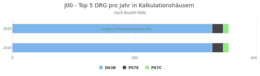 J00 Verteilung und Anzahl der zuordnungsrelevanten Fallpauschalen (DRG) zur Hauptdiagnose (ICD-10 Codes) pro Jahr, in den Kalkulationskrankenhäusern.