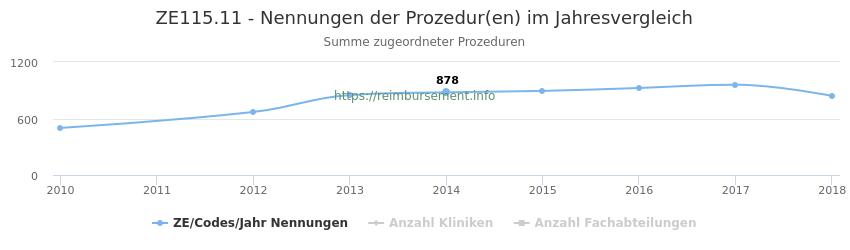 ZE115.11 Nennungen der Prozeduren und Anzahl der einsetzenden Kliniken, Fachabteilungen pro Jahr